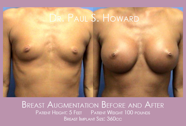 Breast Augmentation Birmingham AL