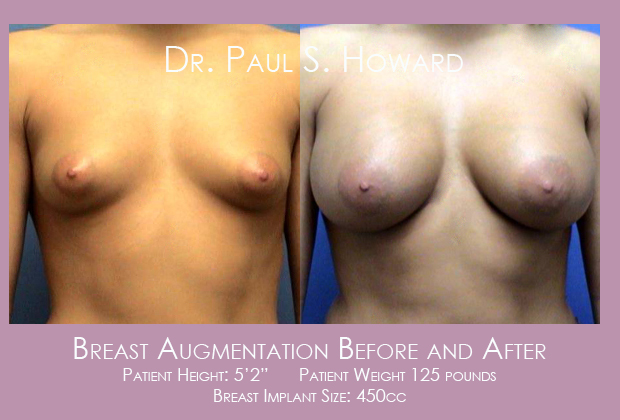 Breast Augmentation Before and After Photos Birmingham