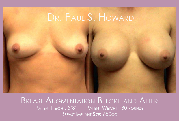 Breast Implants Before and After Birmingham Tuscaloosa Huntsville
