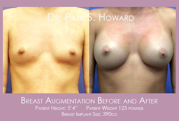 Breast augmentation before and after Alabama