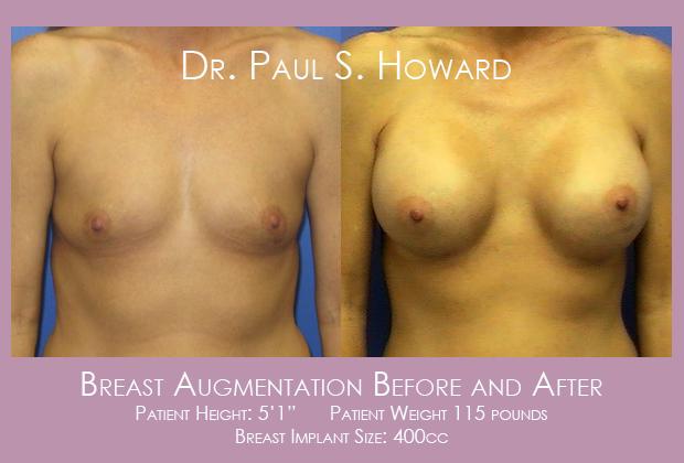 Breast Augmentation Birmingham Tuscaloosa Cullman Huntsville Mobile Dothan