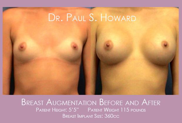 Breast Implants Birmingham Tuscaloosa Montgomery Dothan Huntsville Cullman